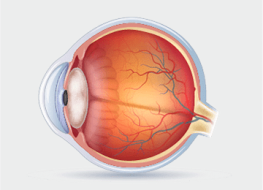 Eye Conditions image